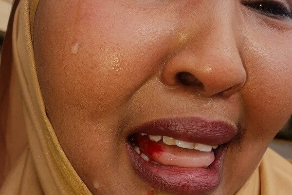 Wajir East MP assault s female rep. outside parliament