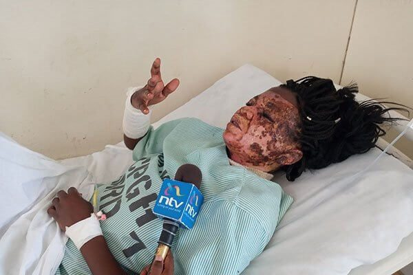 Mombasa woman sustains burn wounds sustained by former husband
