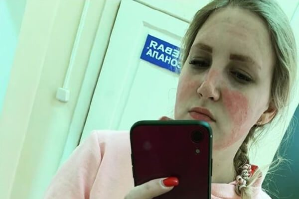 Russian nurse suffers second degree burns from a mask
